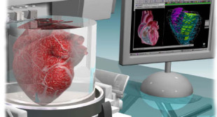 Why 3D Printing Organs Will Be Hard – Difficulties of Bioprinting