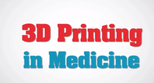 3D Printing With Vitamins – Implants in 3D Printing Technology