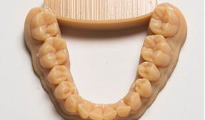 3D-Printing Dental Market