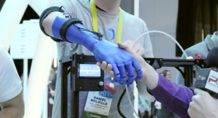 New 3D Printing Developments in 3D Printed Prosthetics  – Live From the Intel Booth